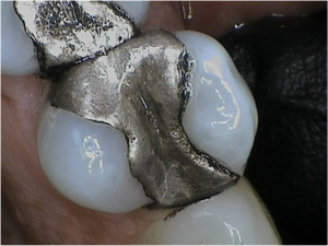 Image of a silver filling by Boulder Dental Arts