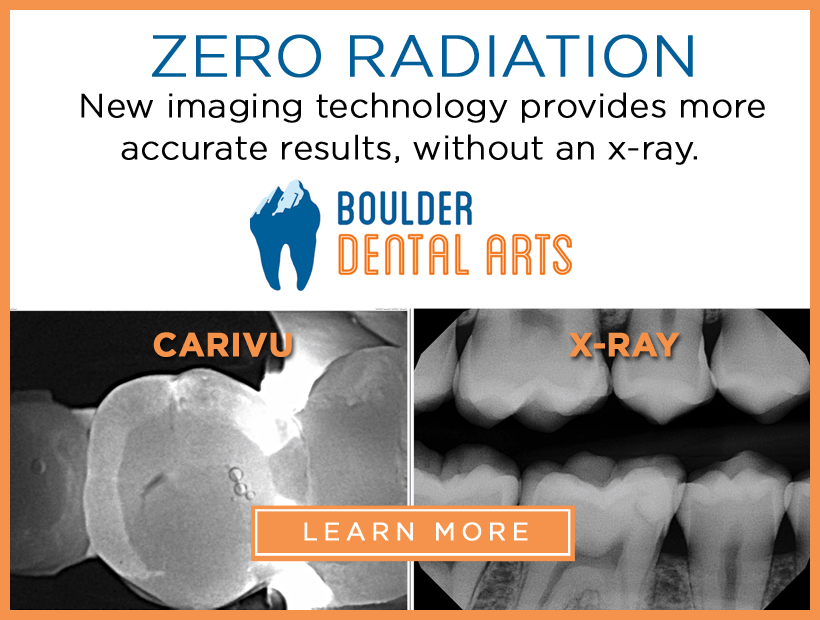 Radiation-Free Dentistry now at Boulder Dental Arts