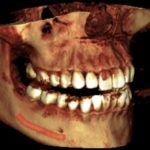 With CBCT we can get a 3D image of your teeth